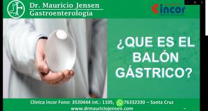 balon gastrico 2